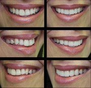 Best Porcelain Veneers Sydney | Cosmetic Dental Treatments
